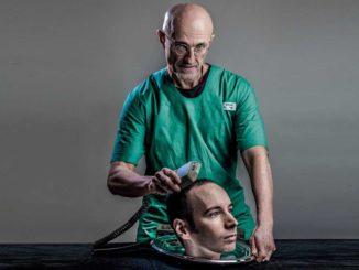 В этом году может состояться первая в истории пересадка головы